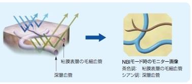 NBI(2).jpg