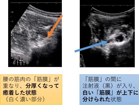 筋膜リリース画像